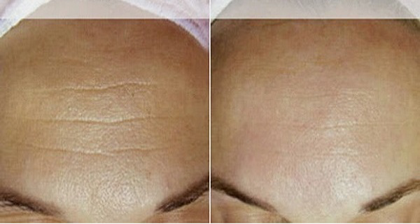 Homemade-Cream-That-Will-Erase-Your-Wrinkles-in-Just-7-Days-1